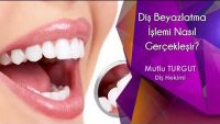 Diş Beyazlatma İşlemi Nasıl Gerçekleşir?