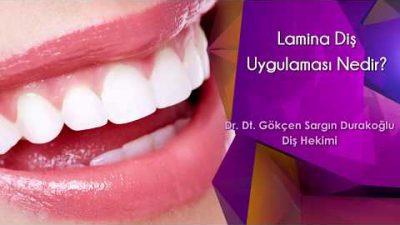 Lamina Diş Uygulaması Nedir?