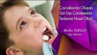 Çocuklarda Oluşan Süt Dişi Çürüklerinin Tedavisi Nasıl Olur?